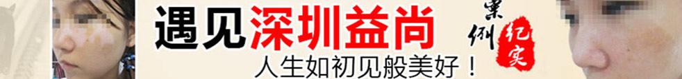 深圳益尚白癜风在线咨询